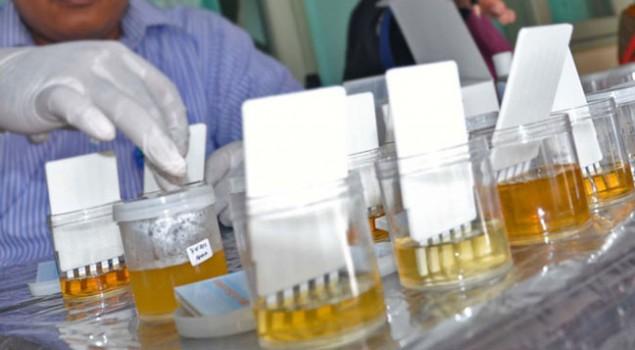 Test Urine Permintaan Kalapas